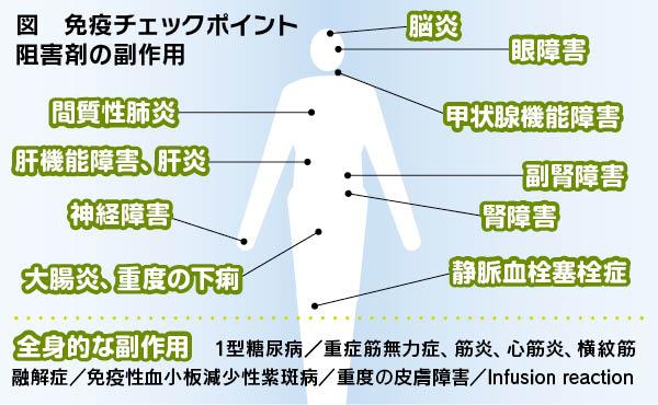 剤 ポイント 免疫 チェック 阻害
