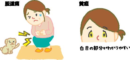 の 原因 黄疸