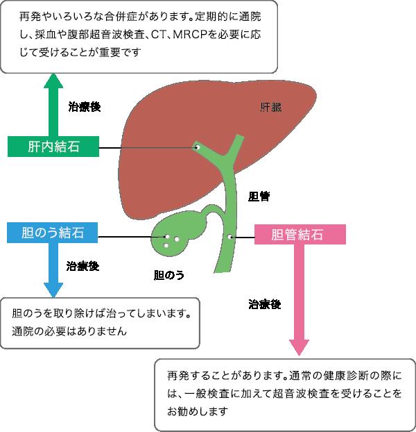 原因 胆嚢 ポリープ 【胆道の病気】胆のうポリープについて